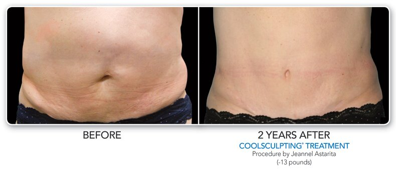 before and  2 years after coolsculpting treatment
