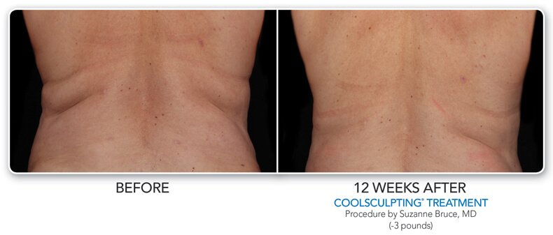 before and 12 weeks after coolsculpting treatment back view