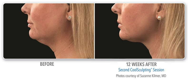 before and  2 years after coolsculpting procedure side view