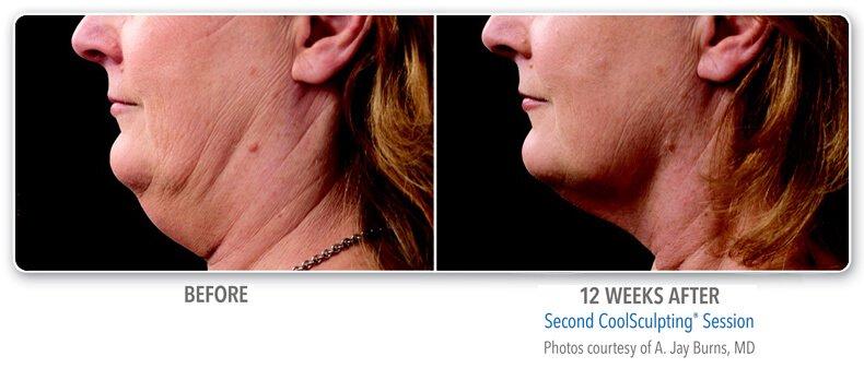 Body Treatments Photo Gallery