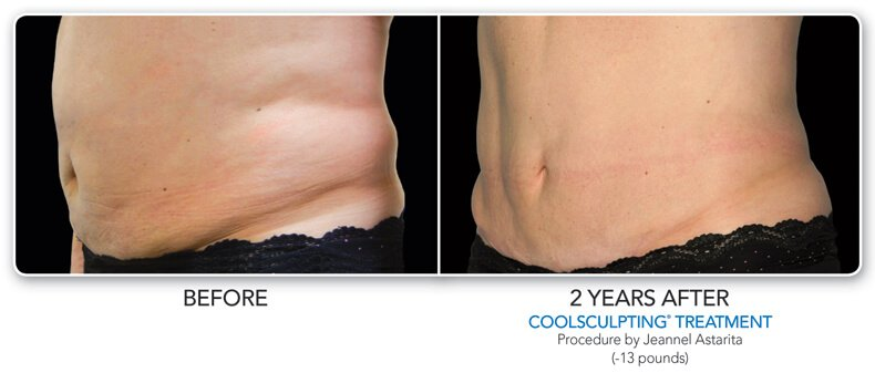 before and  2 years after coolsculpting treatment side view