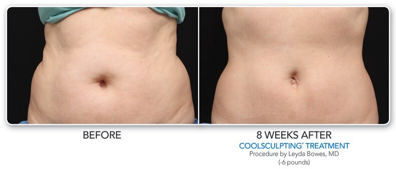 before and  8 weeks after coolsculpting treatment