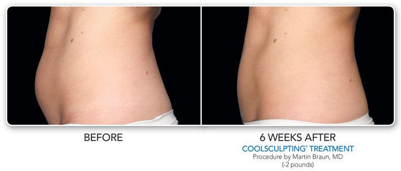 before and  6 weeks after coolsculpting treatment side view