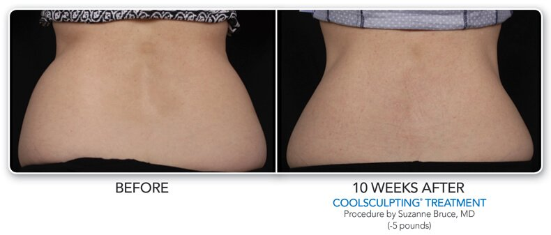 before and  10 weeks after coolsculpting treatment back view