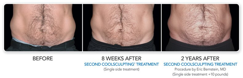 before,   6 weeks after , 2 years after second coolsculpting treatment