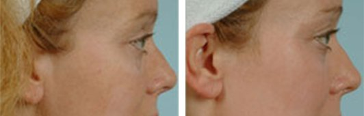 QuadraLASE fractional CO2 laser treatments for the Face patient before and after side photo