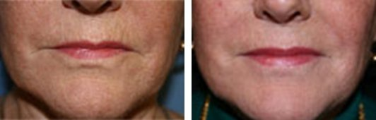 QuadraLASE fractional CO2 laser treatments for the Face patient before and after front photo