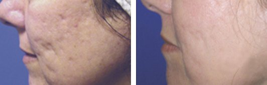 Fraxel laser woman patient before and after side photo