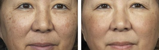 Fraxel laser woman patient before and after front photo