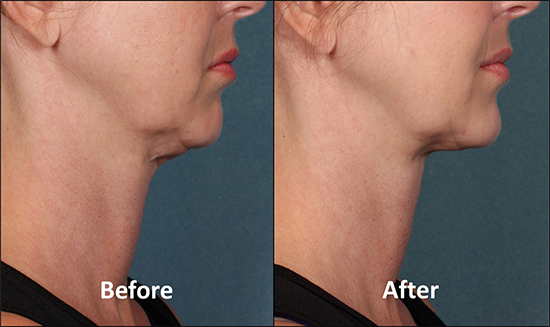 Kybella Results. Before and After Photos - Female, right side view
