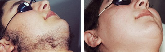 Laser Hair Removal before and after side photo
