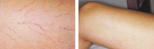 Laser Leg Vein Removal before and after side photo
