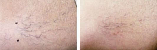 Laser Leg Vein Removal before and after front photo