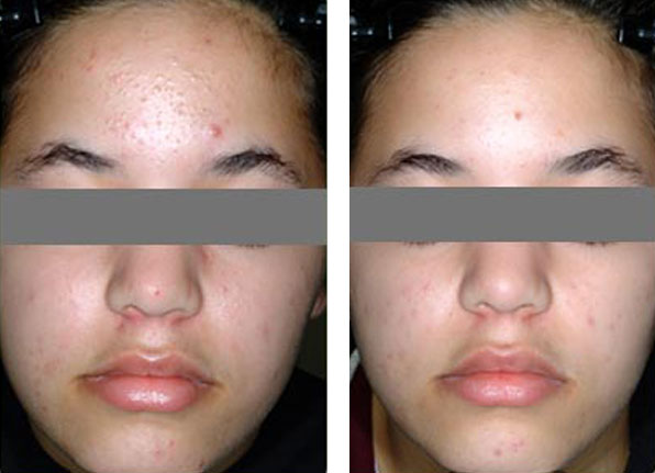 acne treatment before and after patient photo 1