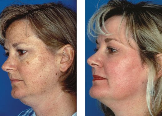 Obagi Blue Peel patient before and after photo 1