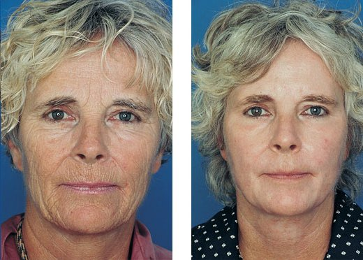 Obagi Blue Peel patient before and after photo 2