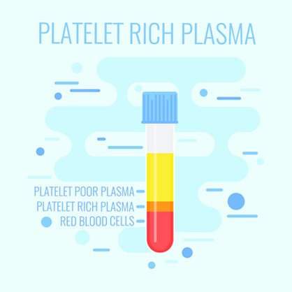platelet rich plasma right