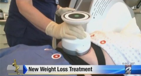 Watch Video: The UltraShape system featured at Baylor College of Medicine