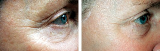 V-beam Laser Treatment FAQ before and after side photo