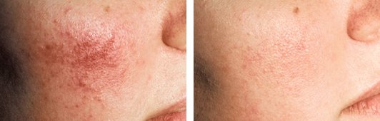 V-beam Laser Treatment FAQ before and after front photo