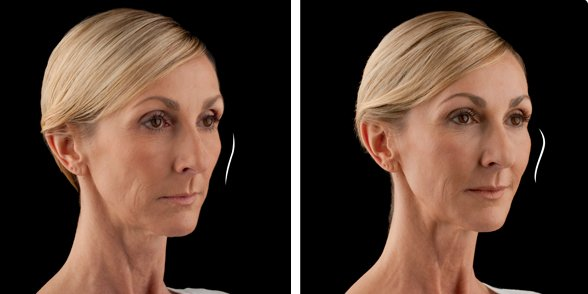 Juvederm before and after side photo