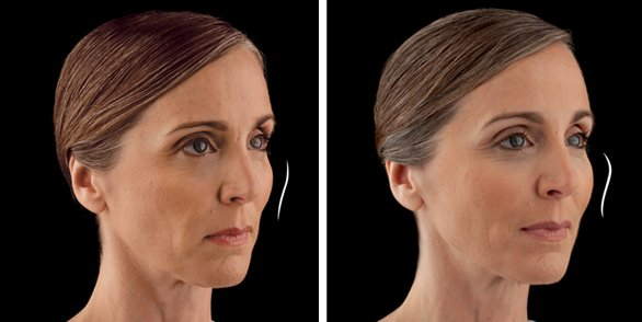 Juvederm before and after front photo
