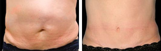 coolsculpting patient before and After photo 1