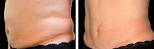 coolsculpting patient before and After photo 2
