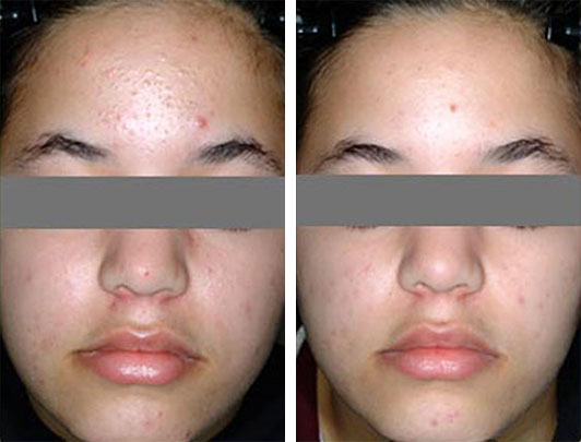 Blu-U Blue Light Acne Treatment LA