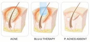 Blu-U Blue Light treatment
