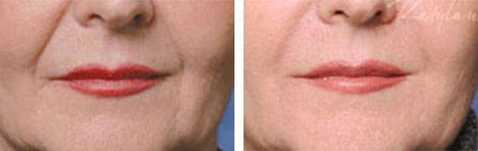 Restylane patient before and after Photo 1
