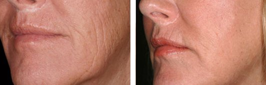 QuadraLASE fractional CO2 laser treatments for the Face patient before and after side photo 3