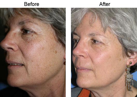 Fractional Co2 Laser Los Angeles Skin Rejuvenation Santa