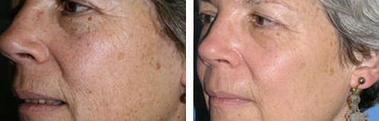 QuadraLASE fractional CO2 laser treatments for the Face patient before and after side photo 4
