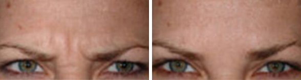 Dysport Wrinkle Reduction with Leading Los Angeles Dermatologist