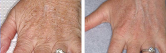 Fraxel laser woman patient before and after side photo 3