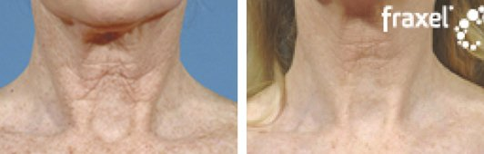 Fraxel laser woman patient before and after side photo 4