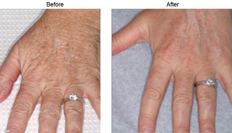 Fraxel Laser Los Angeles Skin Resurfacing Beverly Hills