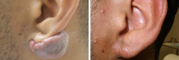Keloids before and after front photo