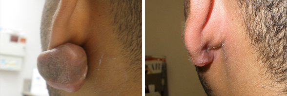 Keloids before and after side photo 3