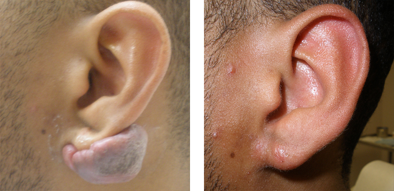 Keloids Treatments Los Angeles | Laser Treatment for KeloidsKeloid Removal On Earlobe