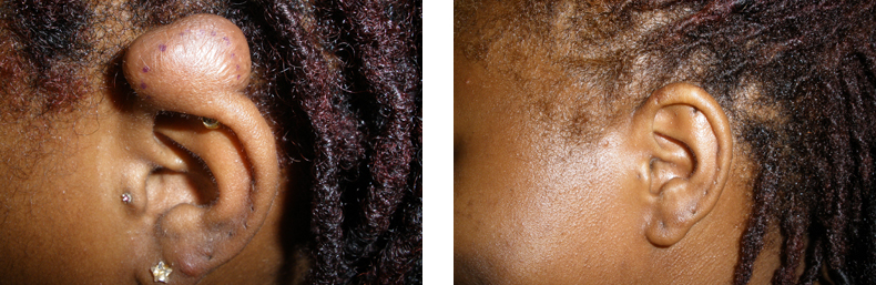 Keloids Before And After Side Photo 4