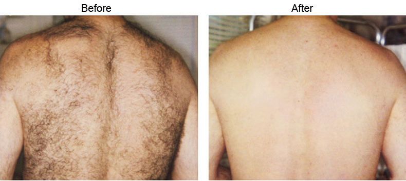 Laser Hair Removal Los Angeles Hair Reduction Beverly Hills