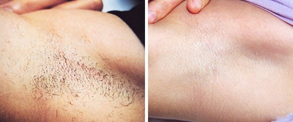 Laser Hair Removal before and after side photo 3