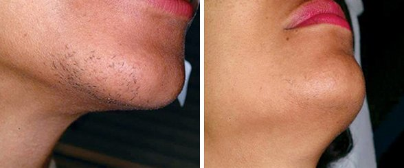 Laser Hair Removal before and after side photo 4