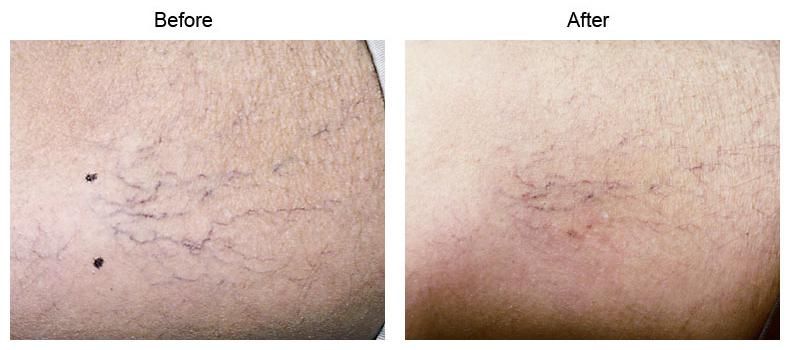 Laser Leg Vein Removal Los Angeles Spider Veins Beverly