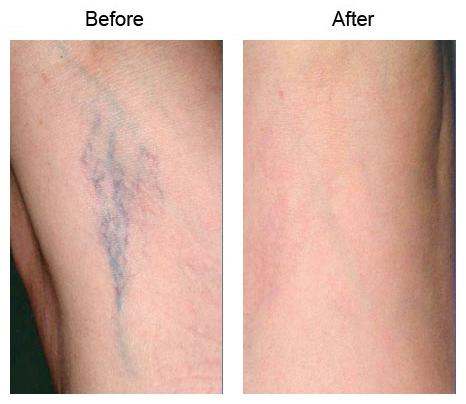 laser leg vein removal los angeles spider veins beverly hills