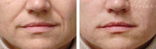Restylane patient before and after Photo 3