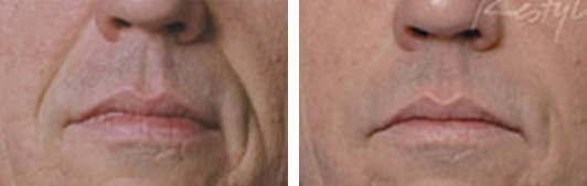 Restylane patient before and after Photo 4