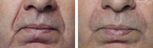 Restylane patient before and after Photo 5